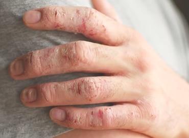 Psoriatic-Arthritis-NY